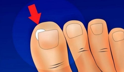 Come curare e prevenire le unghie incarnite