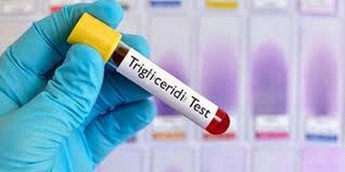 Abbassare i trigliceridi: dieta settimanale