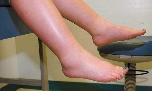 Gambe gonfie a causa della ritenzione di liquidi