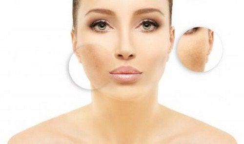 Rimedi casalinghi per ridurre l'iperpigmentazione