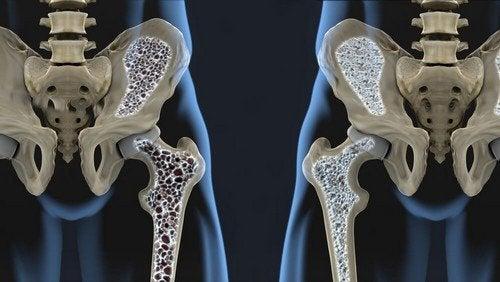 Prevenire l'osteoporosi con l'alimentazione: utili consigli