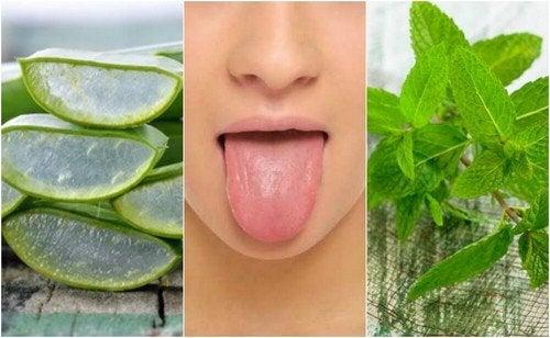 Afte sulla lingua: alleviarle con rimedi naturali