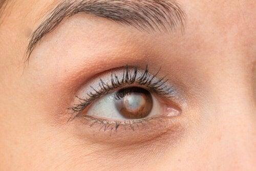 Occhio che presenta i sintomi della cataratta