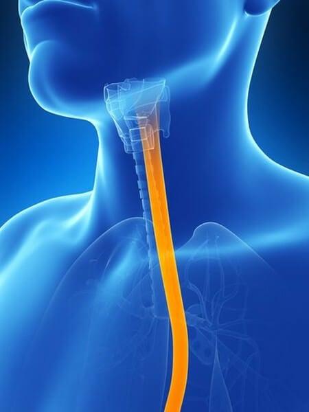 Alleviare i sintomi dell'esofagite con rimedi naturali