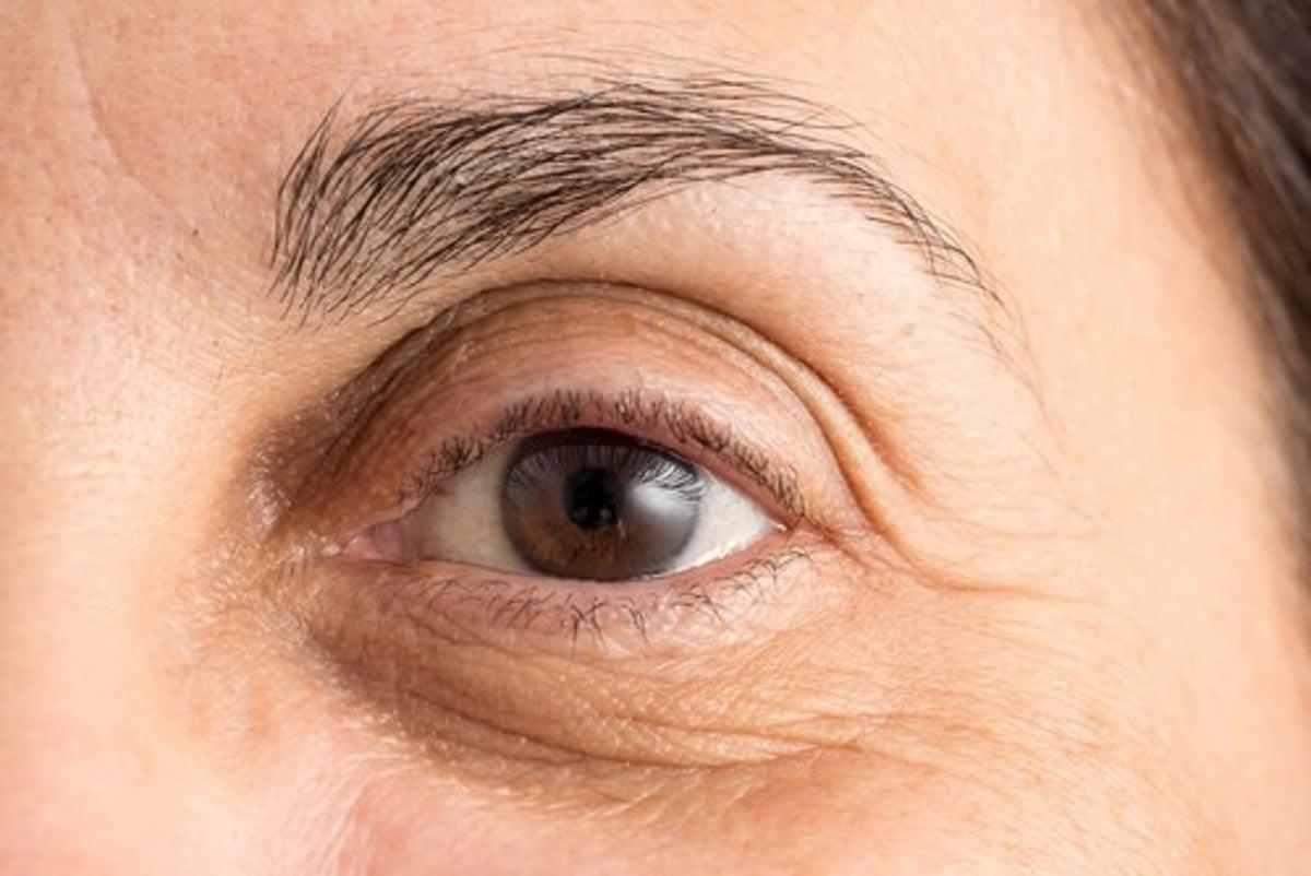 macchie di colesterolo sugli occhi