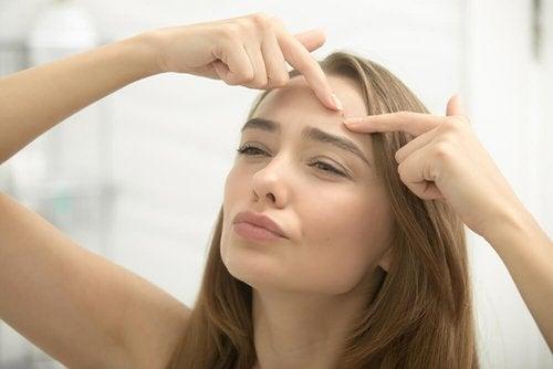 Acne giovanile e tardiva: eliminarla in 8 mosse