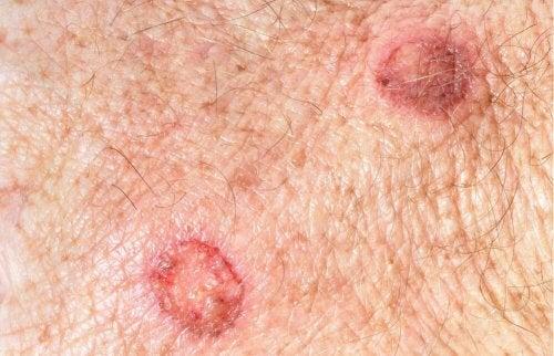 Nei e melanomi