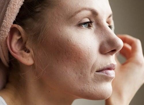 per chiudere i pori del viso