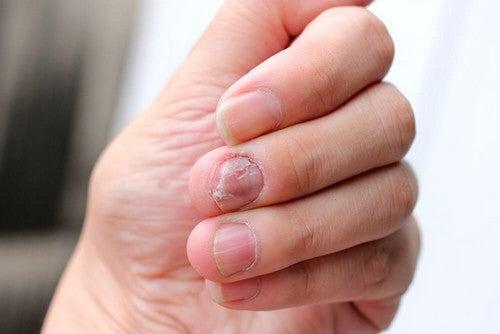 Psoriasi sulle unghie: 5 rimedi naturali