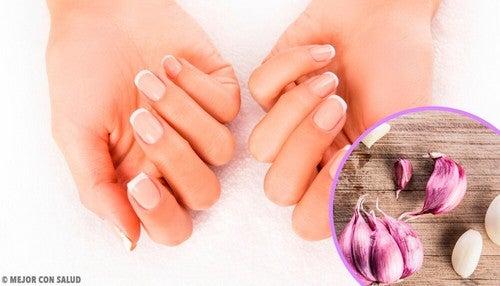 Idratare le unghie con rimedi naturali