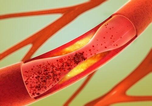 Arteria ostruita