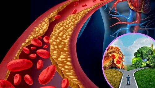 Livelli di colesterolo