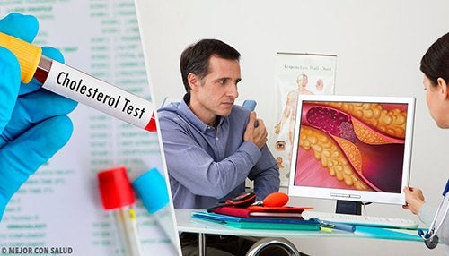 Livello di colesterolo ottimale: quando preoccuparsi?