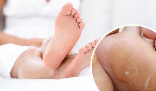 Eliminre i calli dei piedi