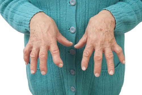 Calmare i sintomi dell'artrite reumatoide con rimedi naturali