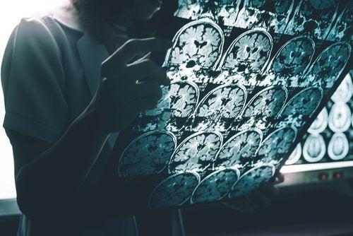 Radiografia Alzheimer