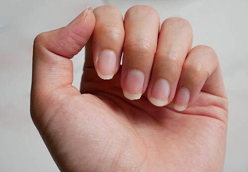 Rimedi per unghie fragili: 9 utilissimi consigli