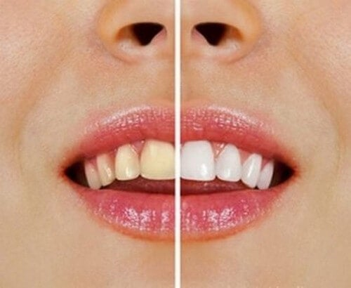 Denti più bianchi in modo naturale