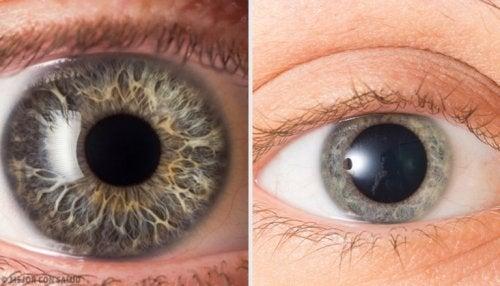 Dilatazione delle pupille
