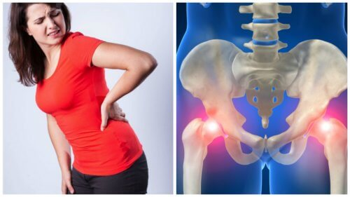 Donna piegata con anca dolore e lastra scheletro bacino