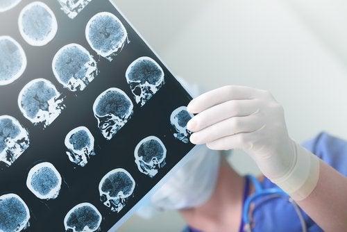Dottoressa guarda lastra differenza tra demenza senile e Alzheimer