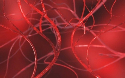 Sbloccare le arterie ostruite con rimedi naturali