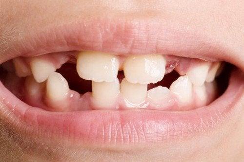 Agenesia dentale: che cos'è e come trattarla