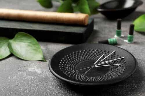 Agopuntura: 5 benefici da conoscere