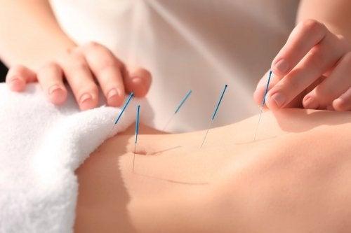 Agopuntura sulla pancia