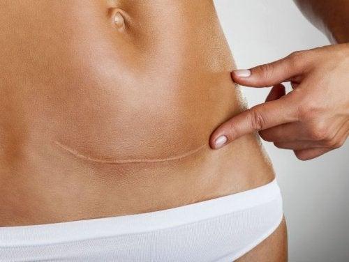 Cicatrice da taglio cesareo