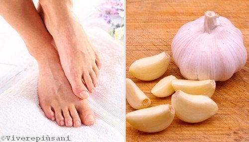 Curare le unghie incarnite con l'aglio schiacciato
