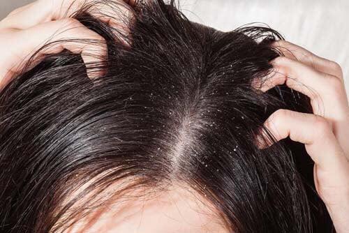 Forfora e motivi per cui cadono i capelli