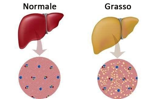 Fegato normale e grasso