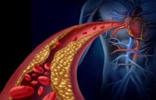 La corretta dieta per abbassare i trigliceridi