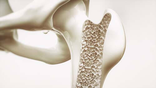 Per le ossa fa bene mangiare granola