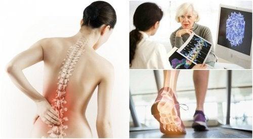 Malattie delle ossa della schiena