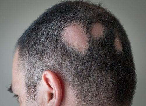Uomo con alopecia