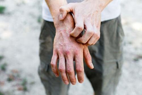 Dermatite da contatto e rimedi naturali