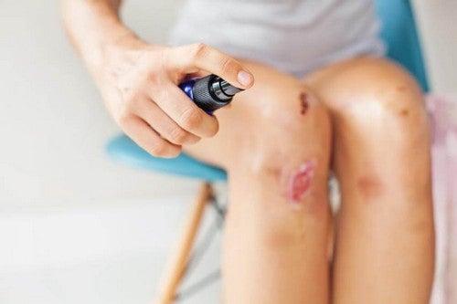 Trattare una ferita in modo corretto