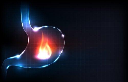 Bruciore e acidità di stomaco