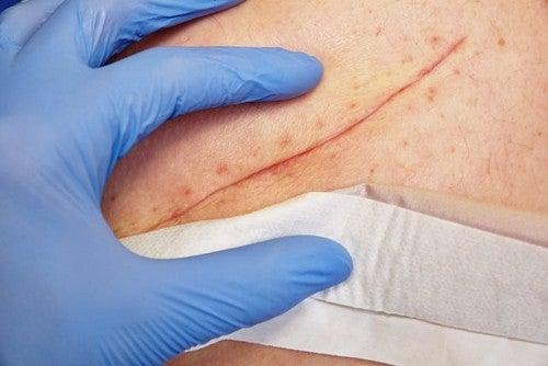Chiusura delle ferite: tecniche di base