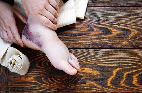 Curare una distorsione alla caviglia con rimedi naturali