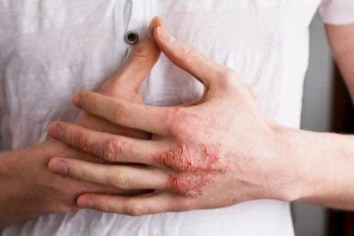 Eczema sulle mani