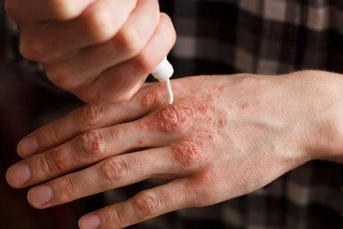 Crema emoliente per artrite psoriasica