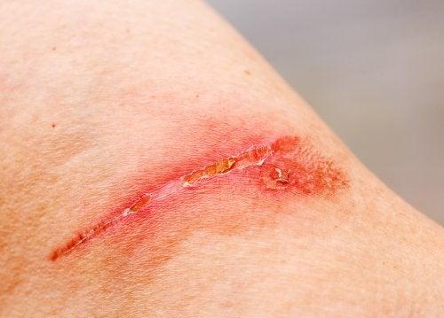 Ferita in via di cicatrizzazione