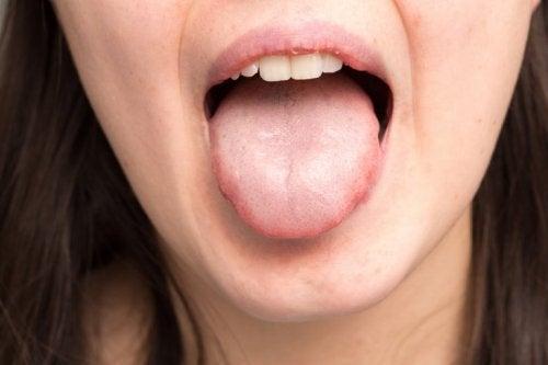 Infezioni del cavo orale