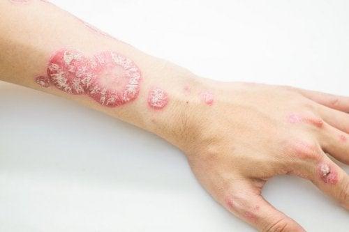 Psoriasi sul braccio