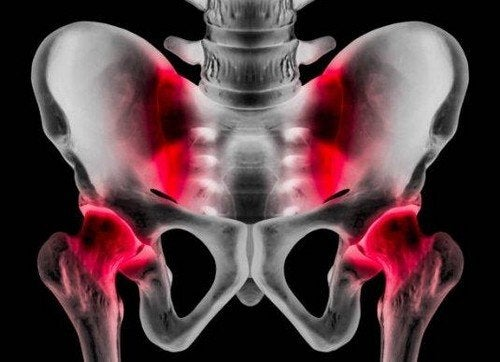 Pubalgia: cause, sintomi e trattamento