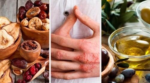 Eczema cutaneo: cause, sintomi e trattamento