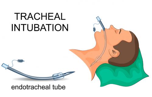 Tubo endotracheale